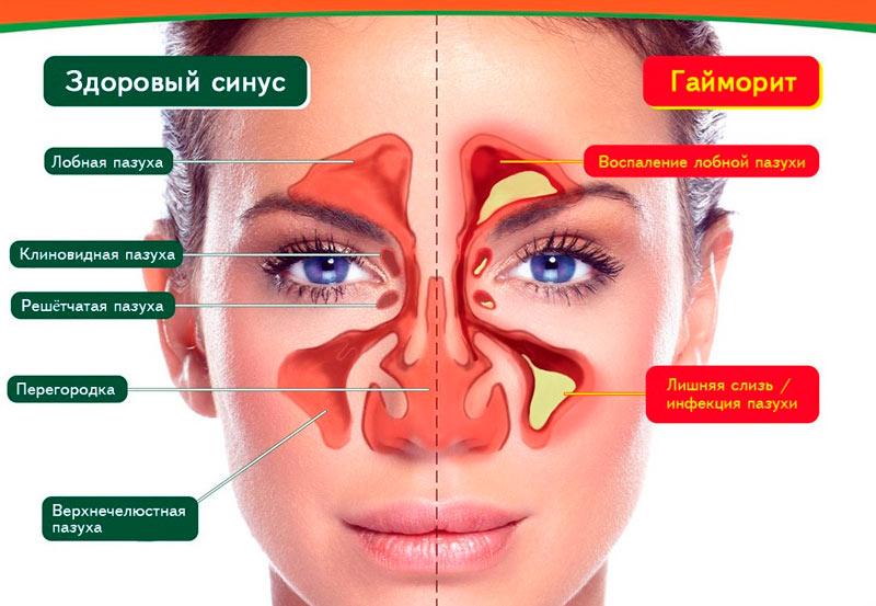 Здоровый синус и гайморит - воспаление верхнечелюстных пазух синусов
